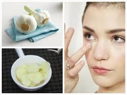 5 bài thuốc trị mụn dưới da có thể thực hiện ngay tại nhà